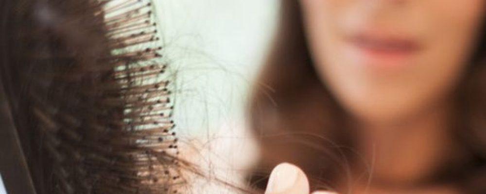 Vypadávanie vlasov , otázky a odpovede.